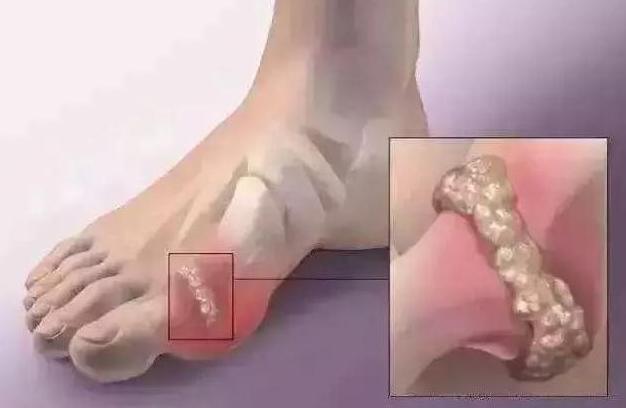 脚痛风的治疗方法讲解