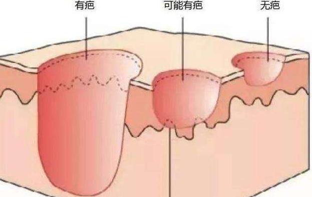 除疤的方法有哪些?四种主流除疤方法介绍