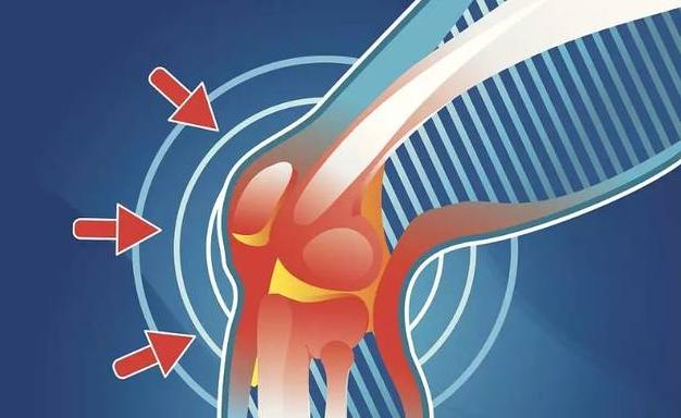 骨性关节炎吃什么药效果好?三种缓解疼痛药物介绍